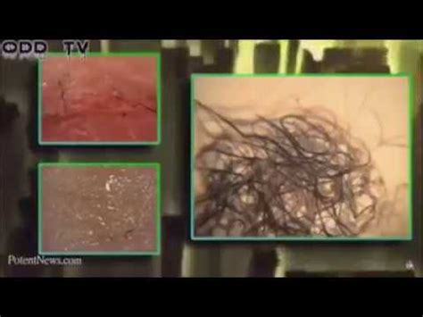 Smart Dust, Chemtrails, and Morgellons - YouTube