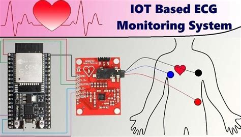 IoT-based Heart Monitoring with ESP32   Espressif Systems